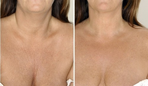 предотвратить процесс старения кожи