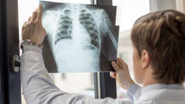 лечение смертельных болезней легких